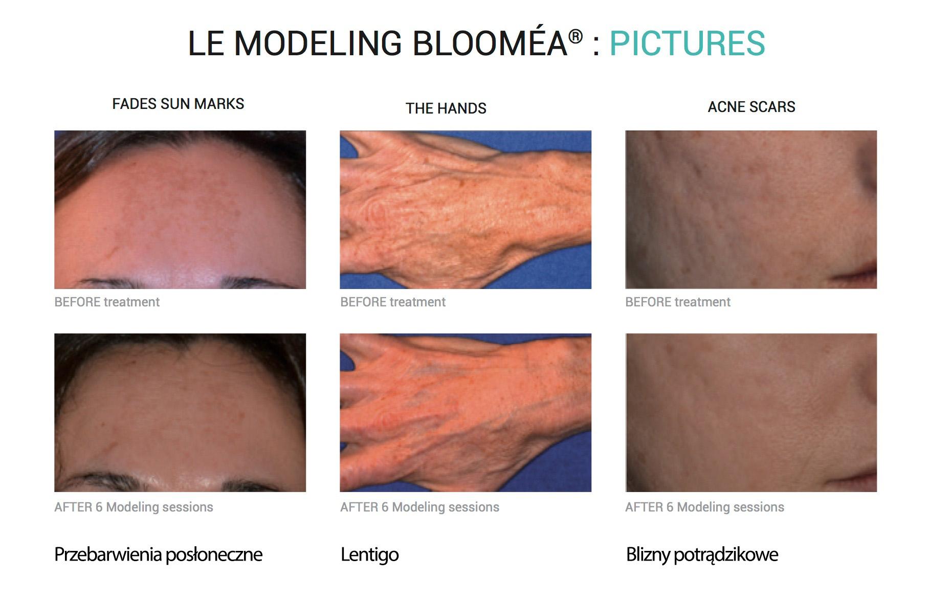 bloomea-2