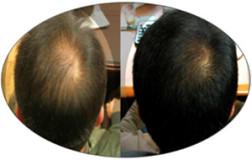 karboksyterapia-img-1