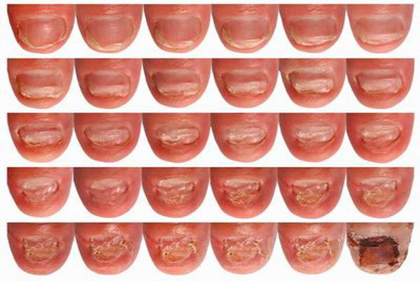 laserowe-leczenie-paznokcia